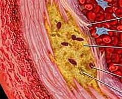 Десять способов понизить холестерин